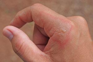 Impetigo Skin Infection