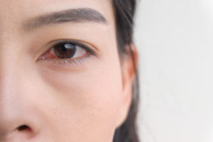 Pink Eye Prescription Online