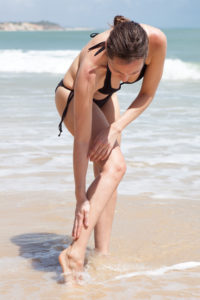 How to Heal a Jellyfish Sting