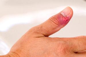 Bacterial Nail Infection Paronychia