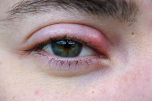 Painful Eye Infection